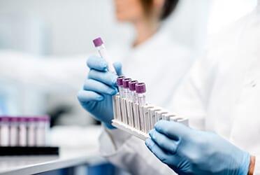 Microbiologische analyses en het analyseplan